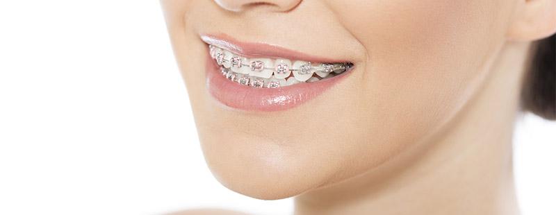 Professionelle Zahnreinigung (PZR) bei kieferorthopädischer Behandlung